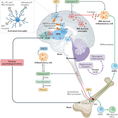 Cervello_Ipertensione