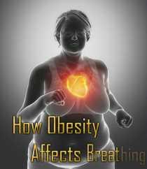 ObesitàRespiro