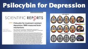 PsylocibinDepressione